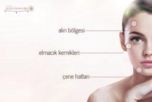 Yüz-Kemik-Konturlarının-Düzeltilmesi